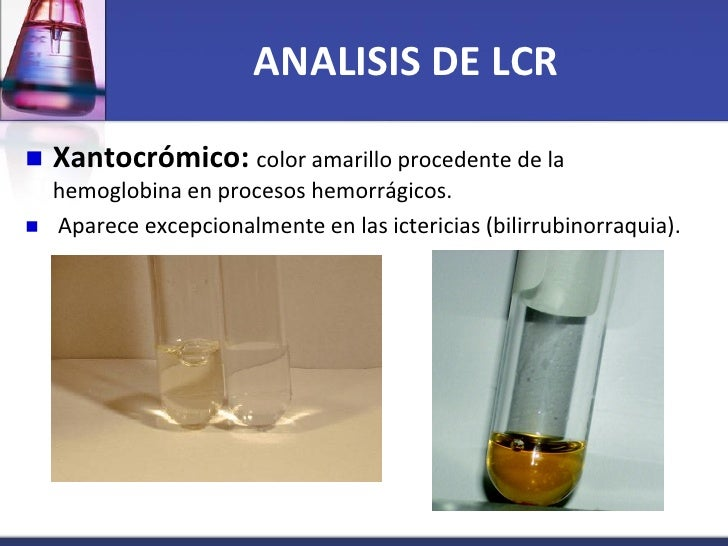 Analsis Liquido Cefalorraquideo Final on sis