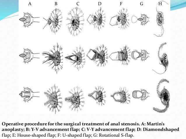 Anal stenosis dilation