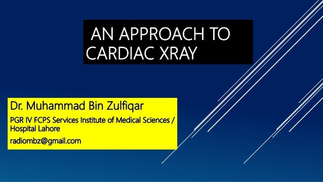 AN APPROACH TO CARDIAC XRAY Dr. Muhammad Bin Zulfiqar PGR IV FCPS Services Institute of Medical Sciences / Hospital Lahore...