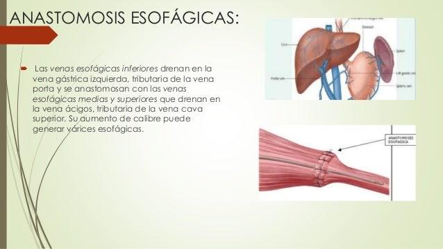 ANASTOMOSIS ESOFÁGICAS:  Las venas esofágicas inferiores drenan en la vena gástrica izquierda, tributaria de la vena port...