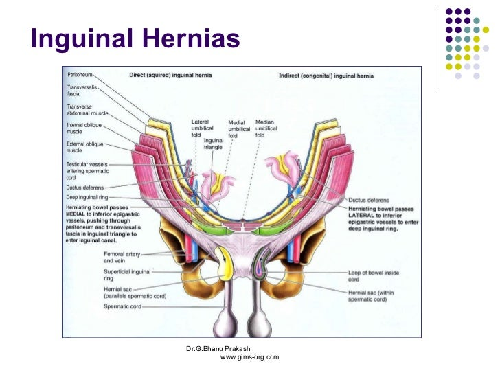 Old Fashioned Anatomy Of The Inguinal Canal Gallery Anatomy And