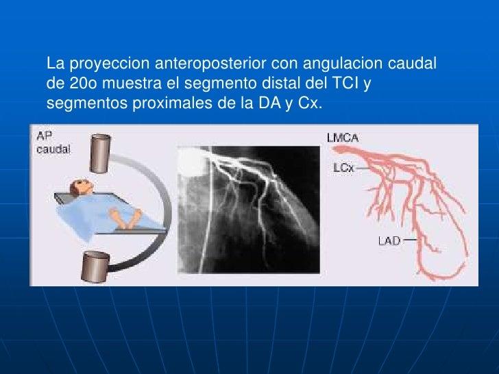CORONARIA IZQUIERDA<br />La vista OAI (60o) con angulacion cranial de 20o, muestra el ostium y la porcion distal del TCI, ...