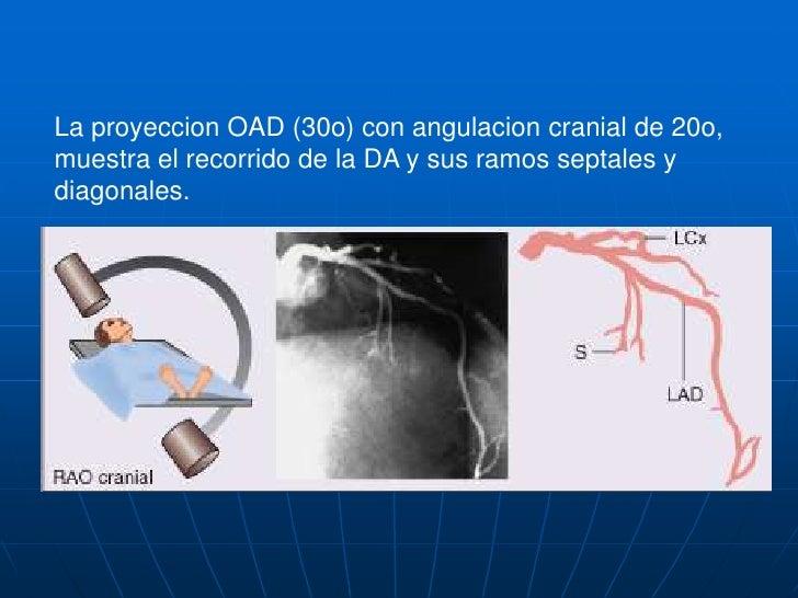 La proyeccion anteroposterior con angulacion caudal de 20o muestra el segmento distal del TCI y segmentos proximales de la...