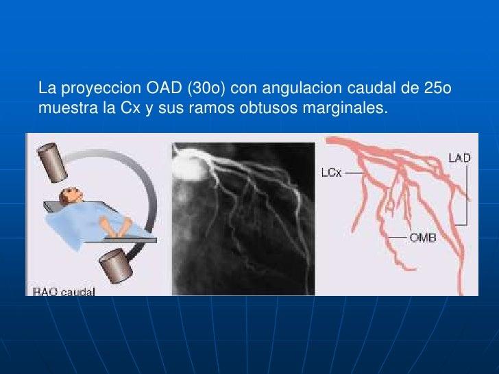 La proyeccion anteroposterior con angulacion cranial de 20o tambien muestra el tercio medio de la DA y separa sus ramos se...