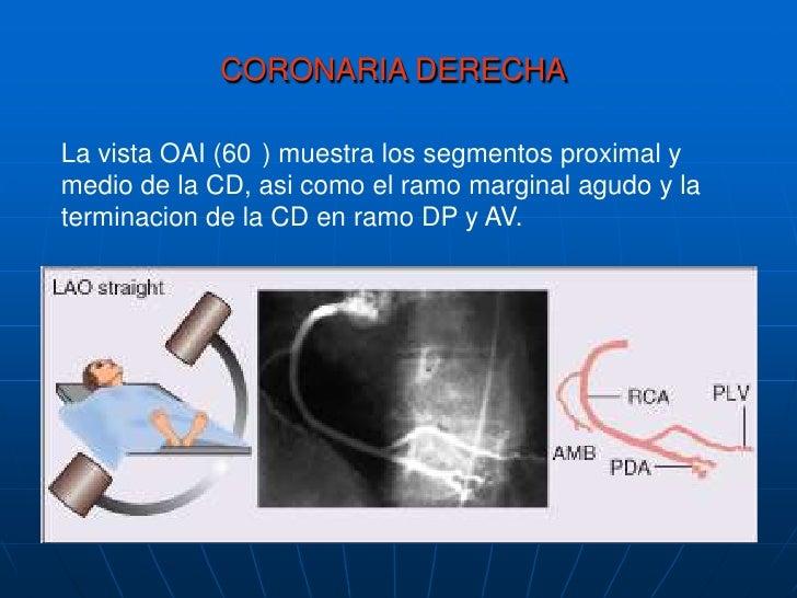 La proyeccionOAD (30o) con angulacion caudal de 25o muestra la Cx y susramosobtusosmarginales.<br />