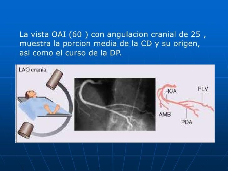 Dos opcionales:<br />OAI 50 a 60o con proyeccion caudal 30°: observa TCI y su division asicomo la Cx.<br />AP caudal 30°: ...