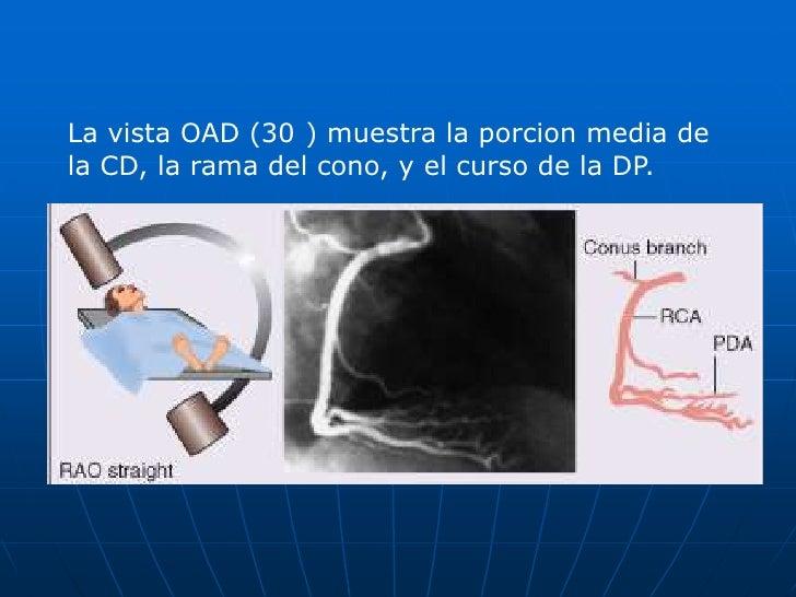 CORONARIA DERECHA<br />La vista OAI (60°) muestra los segmentos proximal y medio de la CD, asicomo el ramo marginal agudo ...