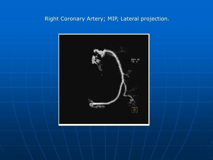 Right Coronary artery. MIP (Major Intensity Projection), LAO (Left Anterior Oblique) 30°, cranial angulation 30° <br />