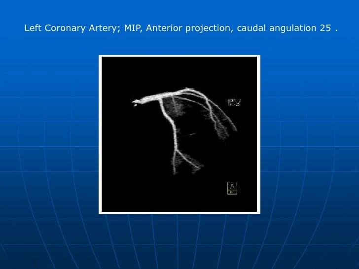 Right Coronary Artery; MIP, RAO (Right Anterior Oblique) 30°, cranial angulation 30°. <br />