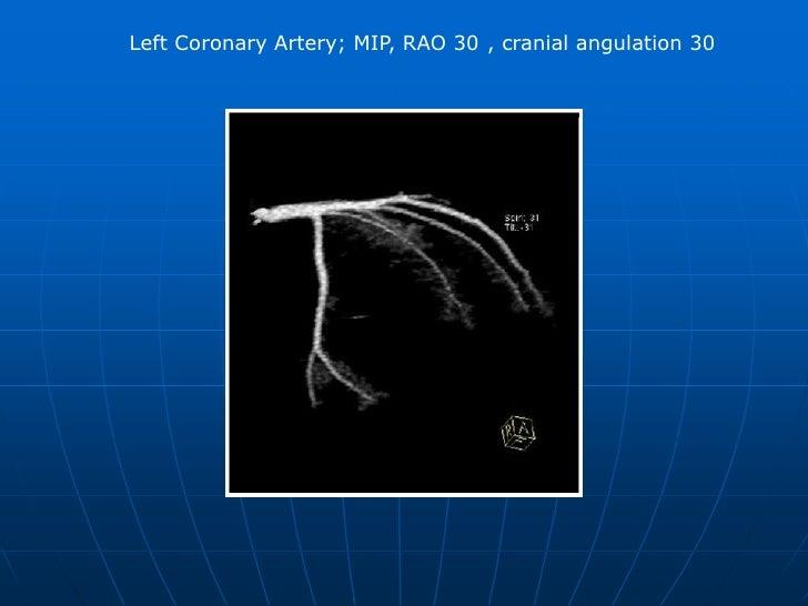 Left Coronary Artery; MIP, Anterior projection, caudal angulation 25°. <br />