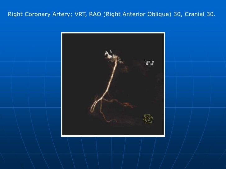 Left Coronary artery; MIP, postero-cranial projection not possible in invasive angiography. <br />