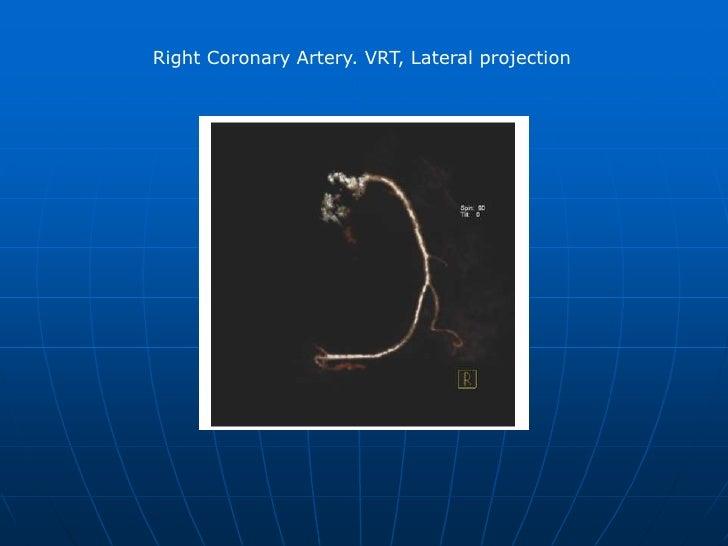 Right Coronary artery. VRT (Volume Rendering Technique). <br />, LAO (Left Anterior Oblique) 30, Cranial 30 <br />