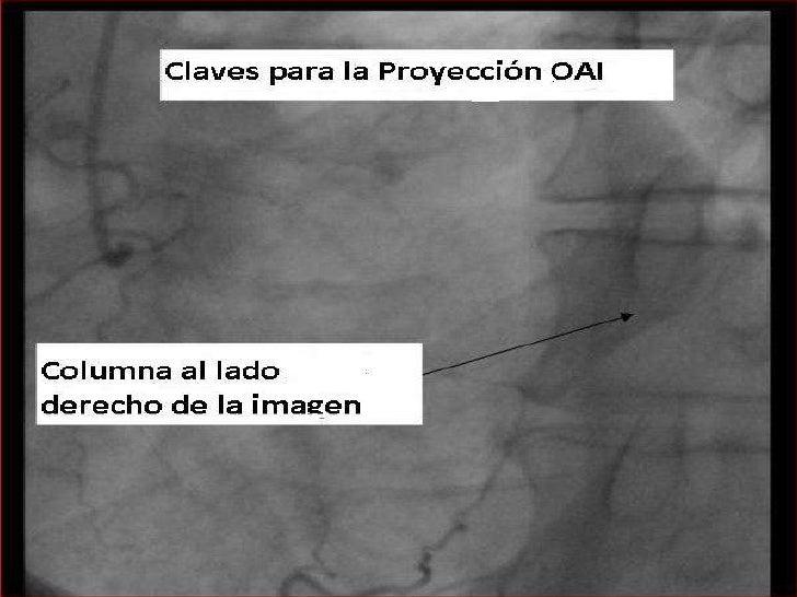 Además: Proyeccionescraneales y caudales</li></ul>Toda lesion debe ser evaluada en por lo menos dos proyecciones.<br />