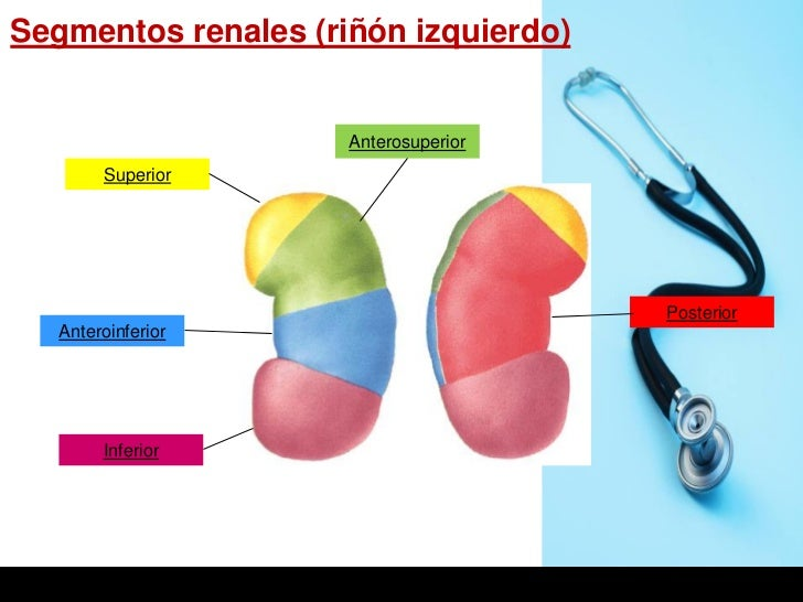 Segmentos renales (riñón izquierdo)                     Anterosuperior        Superior                                    ...