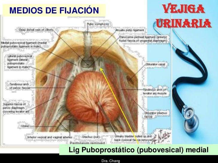 MEDIOS DE FIJACIÓN                  VEJIGA                                   URINARIA           Lig Puboprostático (pubove...