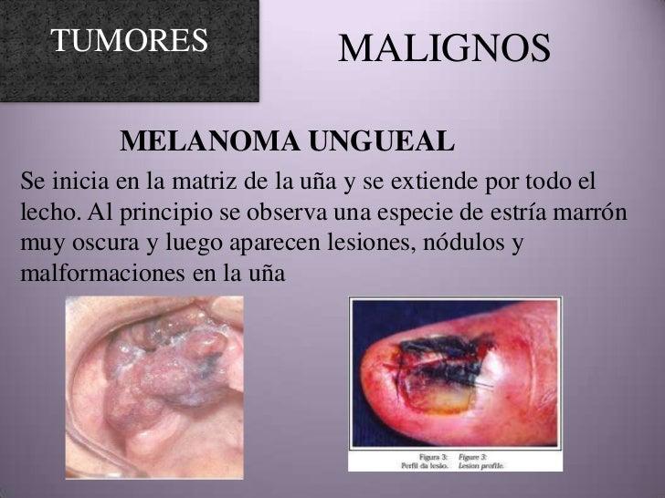 Excepcional Uñas De Melanoma Maligno Regalo - Ideas de Diseño de ...
