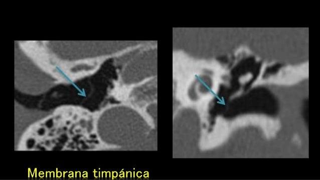 Anatomía del oído y hueso temporal en imagen