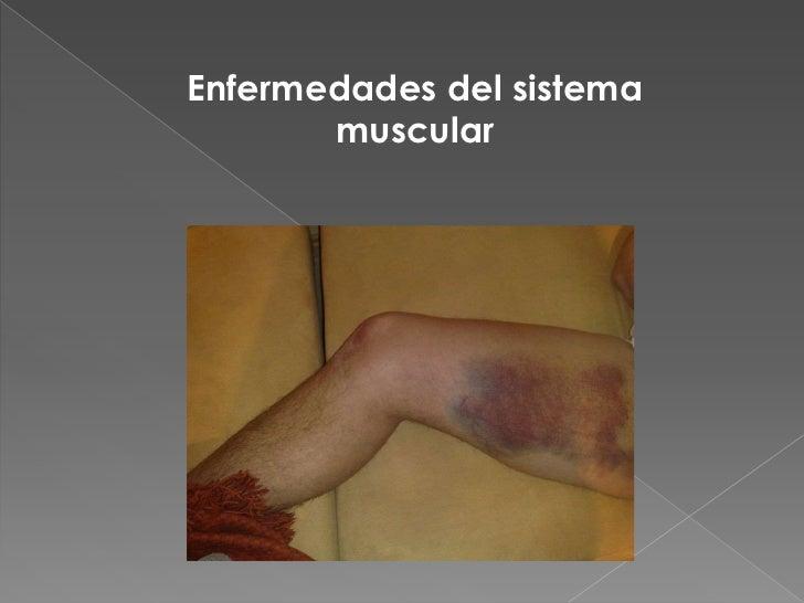 Famoso Hoja De Examen 12 Anatomía Macroscópica Del Sistema Muscular ...
