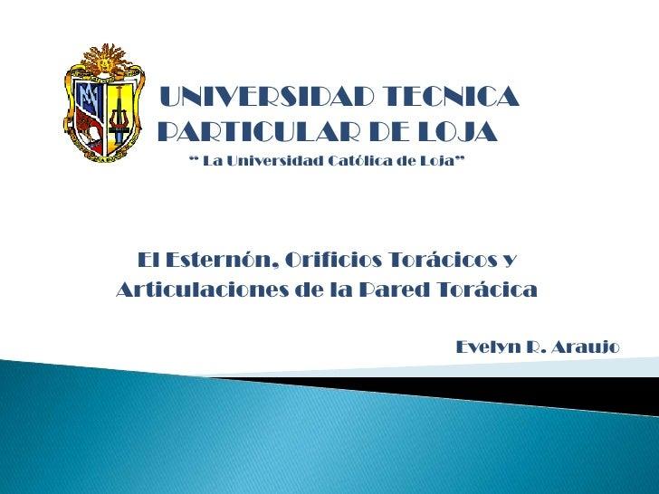 """UNIVERSIDAD TECNICA      PARTICULAR DE LOJA<br />"""" La Universidad Católica de Loja""""<br />El Esternón, Orificios Torácicos ..."""