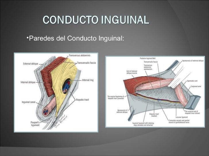 Encantador Anatomía Quirúrgica De Canal Inguinal Ornamento ...
