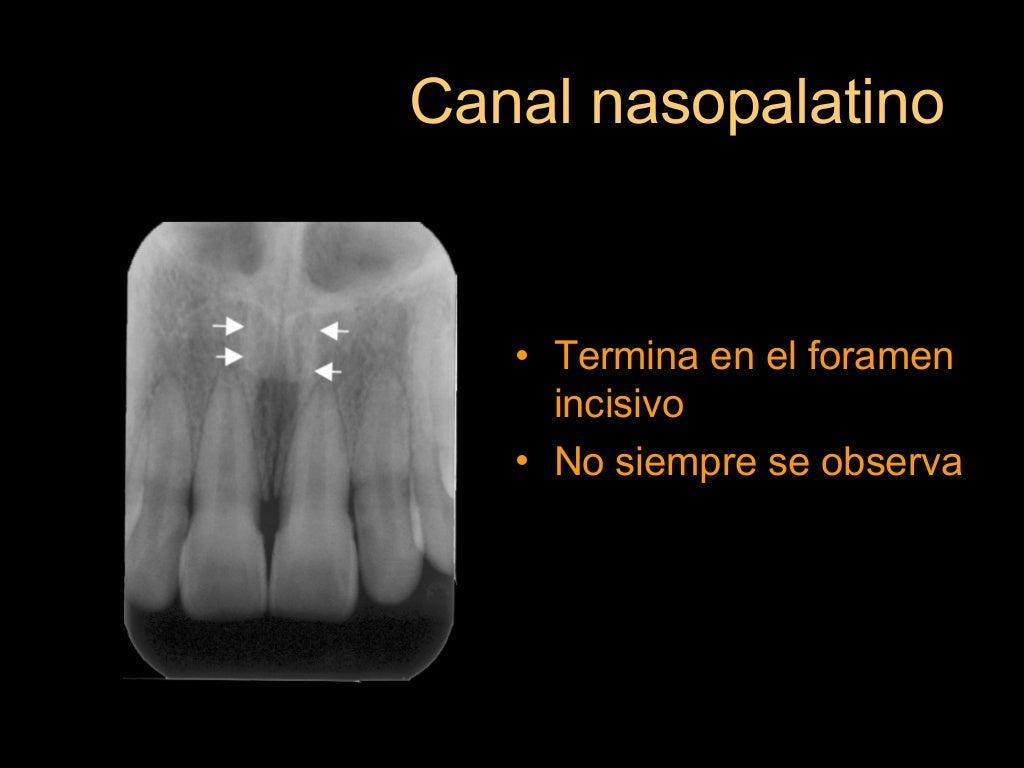 Anatomía radiográfica intraoral