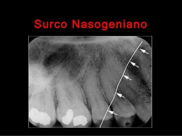 Anatomía radiográfica normal maxilar superior