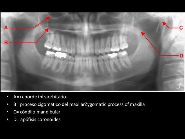 Anatomía radiológica extraoral
