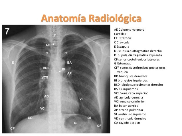 Anatomía Radiológica Neumológía