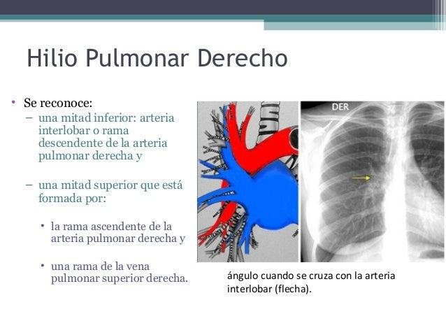 Anatomc3ada hiliar-pulmonar