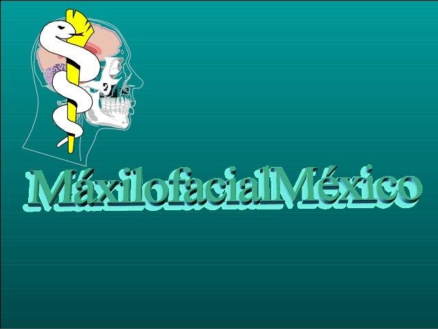 ETMOIDES MALAR MAXILAR ARCO CIGOMATICO FRONTAL ESFENOIDES PARIETAL SEPTUM NASAL NASAL PROCESO ALVEOLAR