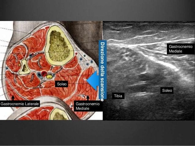 La posizione di atto di asterischi vascolare