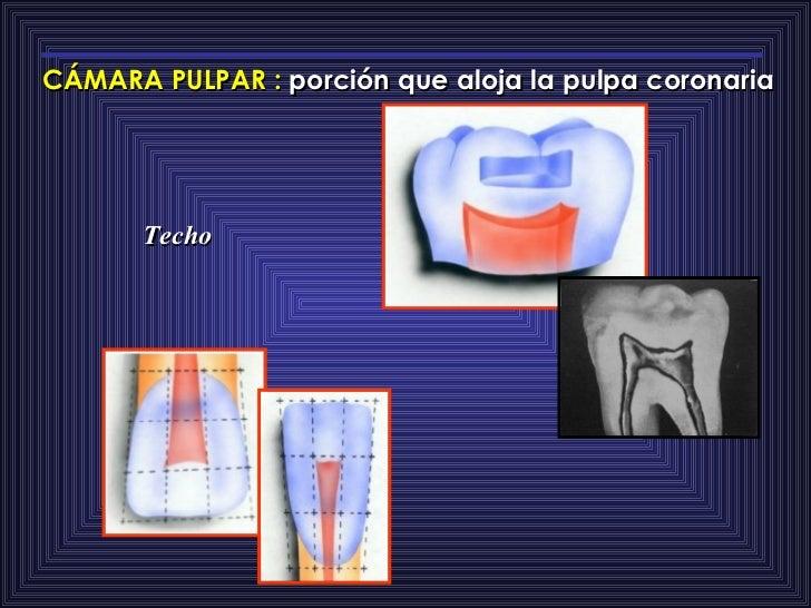 CÁMARA PULPAR   :  porción que aloja la pulpa coronaria Techo