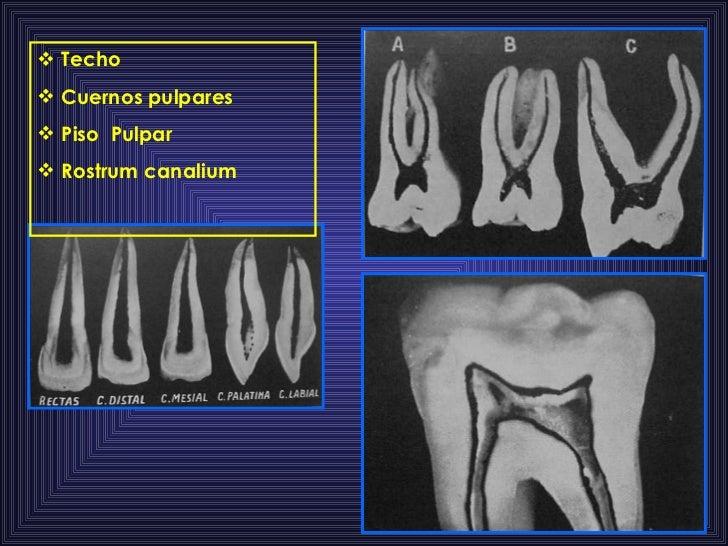 <ul><li>Techo  </li></ul><ul><li>Cuernos pulpares </li></ul><ul><li>Piso  Pulpar </li></ul><ul><li>Rostrum canalium  </li>...