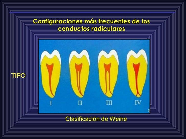Configuraciones más frecuentes de los conductos radiculares Clasificación de Weine TIPO