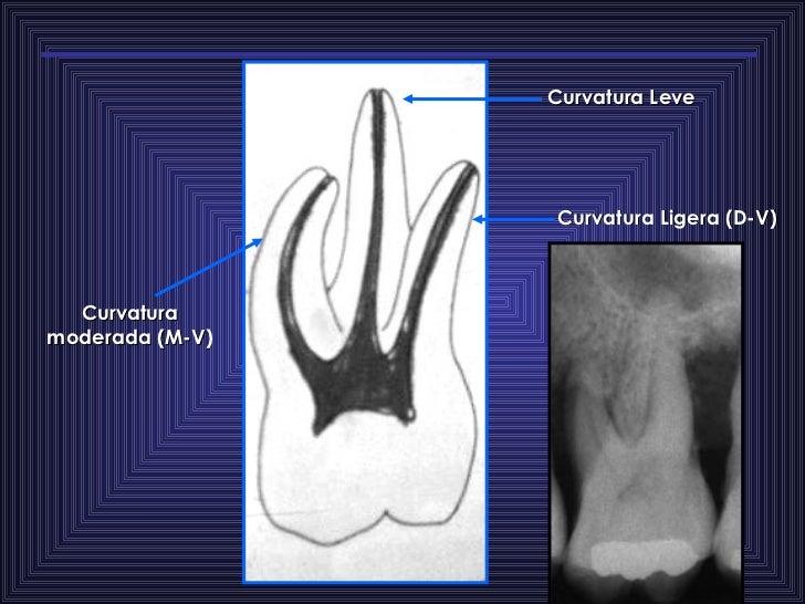 Curvatura moderada (M-V) Curvatura Leve  Curvatura Ligera (D-V)