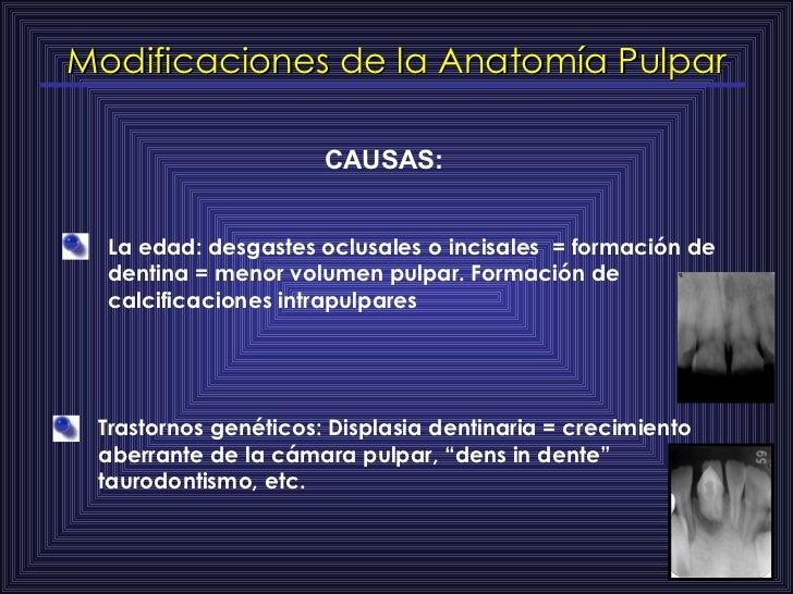 Modificaciones de la Anatomía Pulpar CAUSAS: La edad: desgastes oclusales o incisales  = formación de dentina = menor volu...