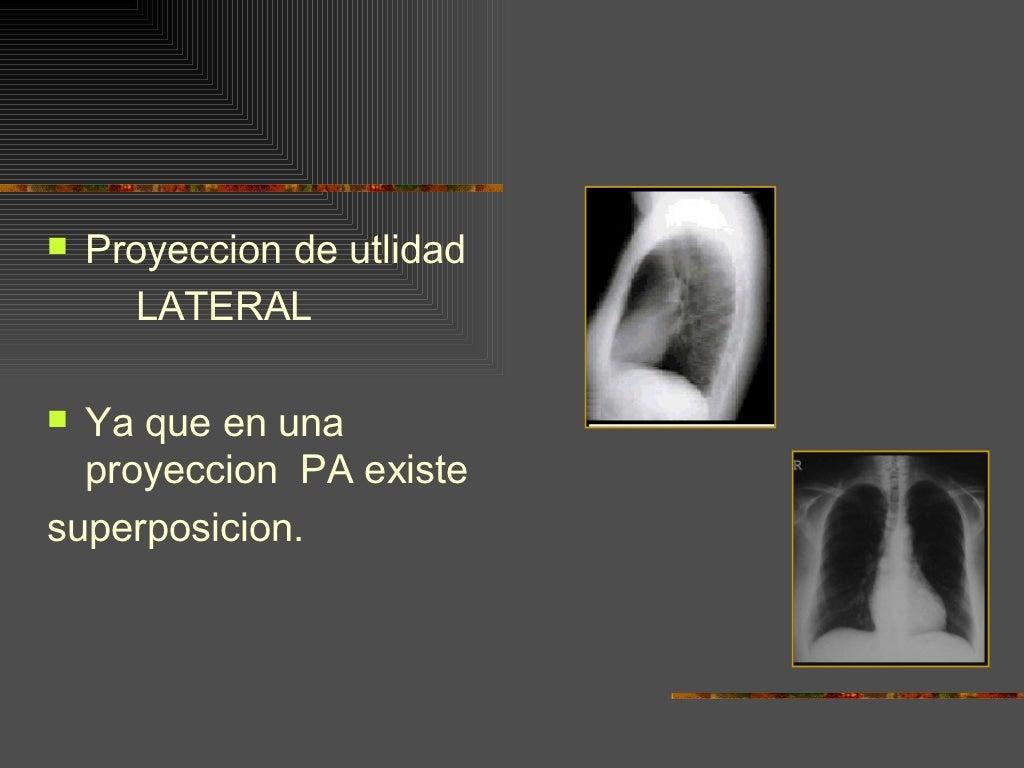Imagenología del Pulmón: Anatomía Segmentaria