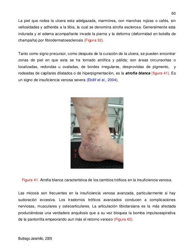 Anatomia venosa-de-los-miembros-inferiores