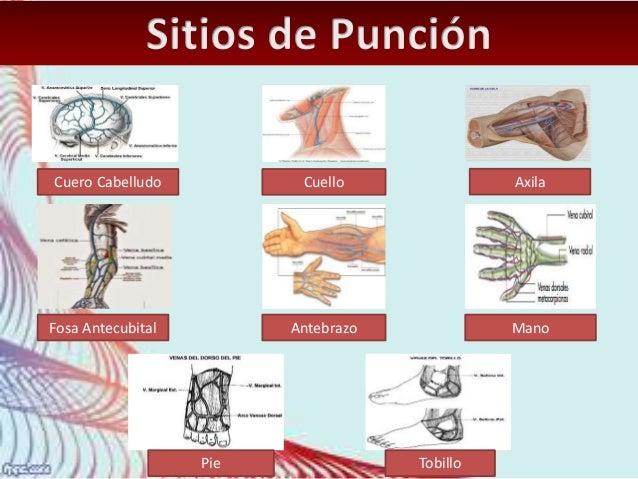 Anatomía De Una Aguja - Sitapati