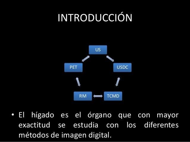 INTRODUCCIÓN • El hígado es el órgano que con mayor exactitud se estudia con los diferentes métodos de imagen digital. US ...