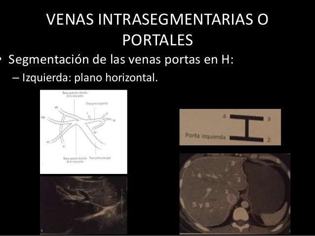 VENAS INTRASEGMENTARIAS O PORTALES • Segmentación de las venas portas en H: – Izquierda: plano horizontal.