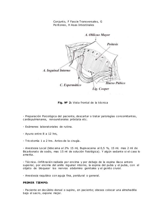 Anatomia de la hernia inguinal