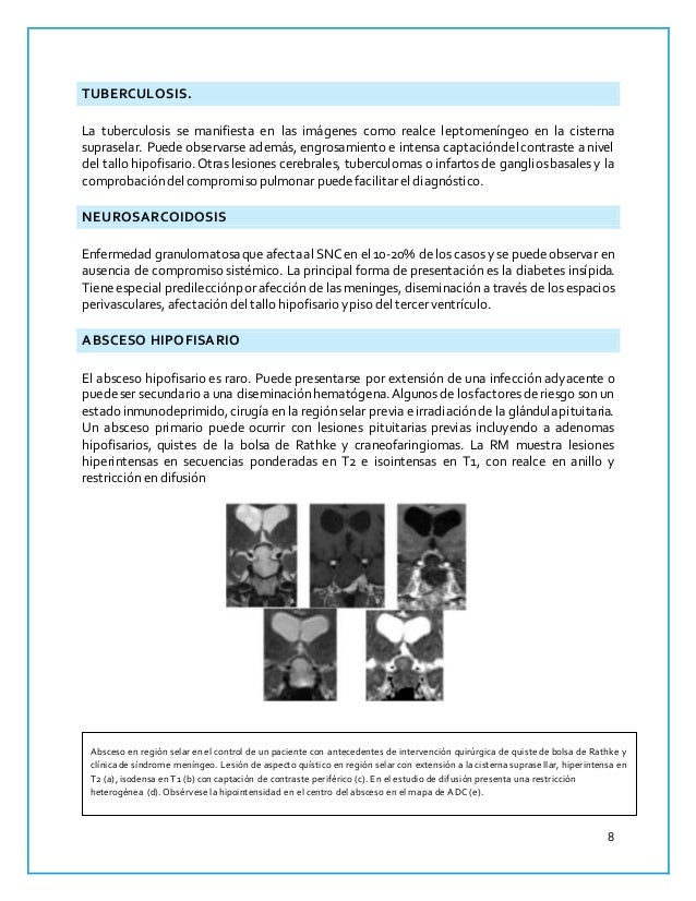 Famoso Anatomía De La Tuberculosis Fotos - Imágenes de Anatomía ...