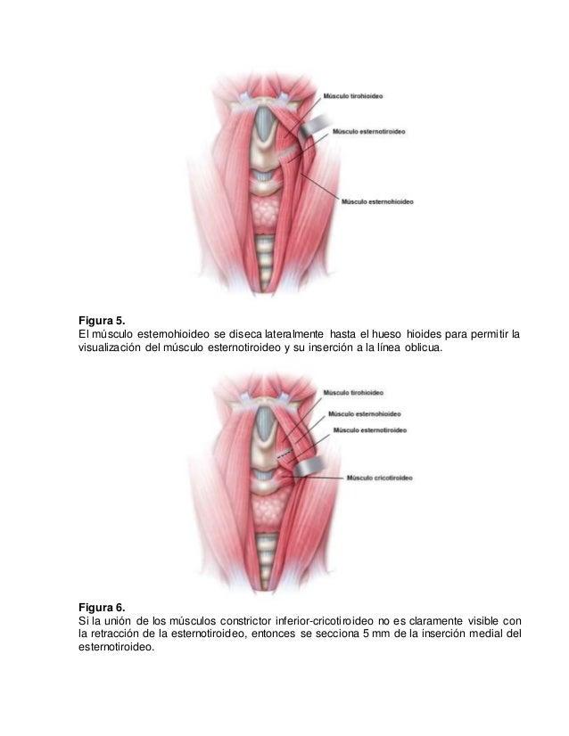 Identificacion y preservacion del nervio lar ngeo superior for Esternohioideo y esternotiroideo