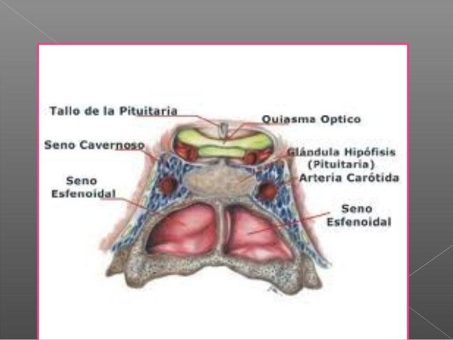 Anatomia de las fosas nasales y senos paranasales