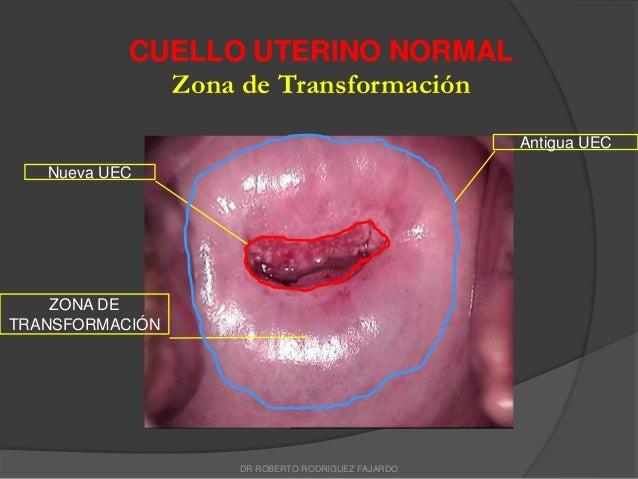 Anatomía del cervix