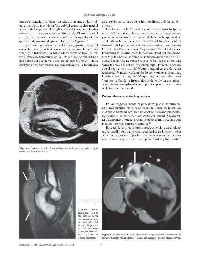 Asombroso Codo De La Anatomía Muscular Mri Friso - Anatomía de Las ...