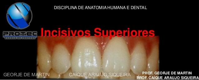 DISCIPLINA DE ANATOMIA HUMANA E DENTAL  Incisivos Superiores  GEORJE DE MARTIN  CAÍQUE ARAUJO SIQUEIRA  PROF. GEORJE DE MA...