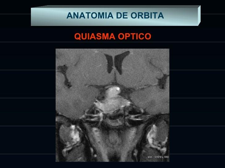 Excepcional Quiasma óptico Anatomía Mri Imágenes - Anatomía de Las ...