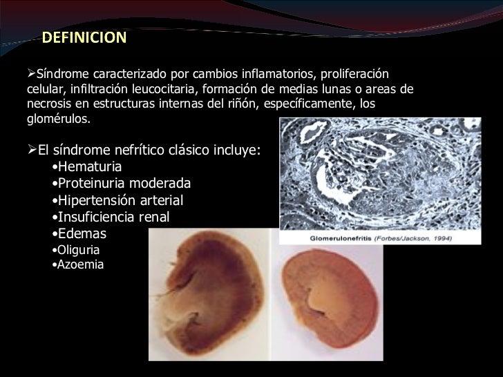 Típicamente desarrollan edema en extremidades inferiores, enregión periorbitaria y tejido escrotal. También puede aparecer...